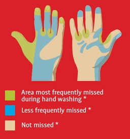 Commonly Missed Areas in Handwashing