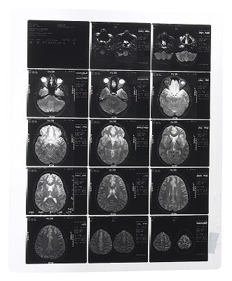 How success looks on an MRI scan.